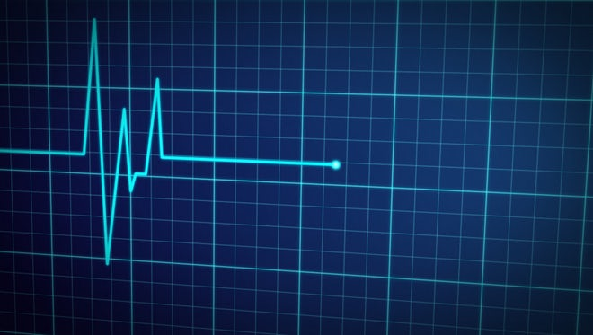 EKG Pulse Display: Stock Motion Graphics